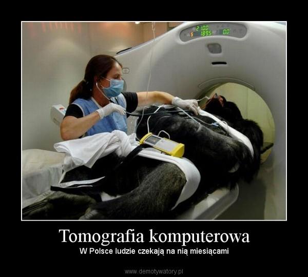 Tomografia komputerowa – W Polsce ludzie czekają na nią miesiącami