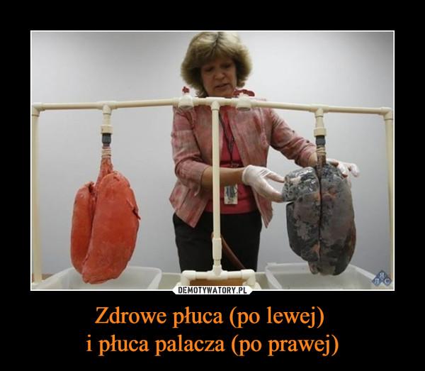 Zdrowe płuca (po lewej) i płuca palacza (po prawej) –