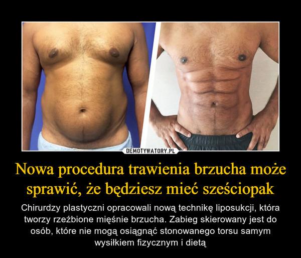 Nowa procedura trawienia brzucha może sprawić, że będziesz mieć sześciopak – Chirurdzy plastyczni opracowali nową technikę liposukcji, która tworzy rzeźbione mięśnie brzucha. Zabieg skierowany jest do osób, które nie mogą osiągnąć stonowanego torsu samym wysiłkiem fizycznym i dietą