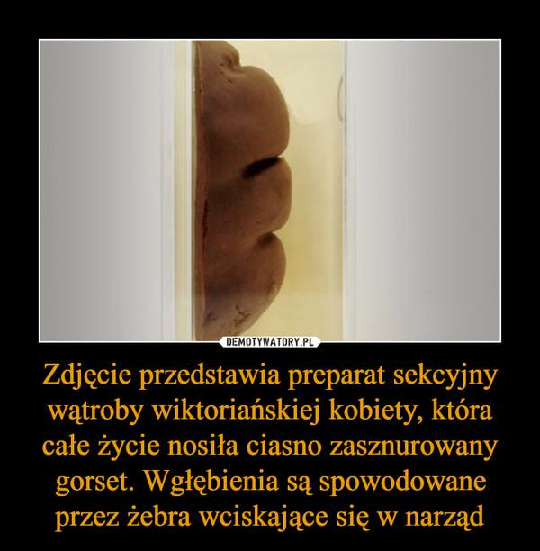 Zdjęcie przedstawia preparat sekcyjny wątroby wiktoriańskiej kobiety, która całe życie nosiła ciasno zasznurowany gorset. Wgłębienia są spowodowane przez żebra wciskające się w narząd –