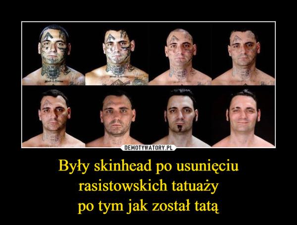 Były skinhead po usunięciurasistowskich tatuażypo tym jak został tatą –