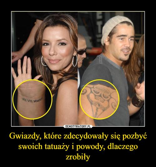 Gwiazdy, które zdecydowały się pozbyć swoich tatuaży i powody, dlaczego zrobiły