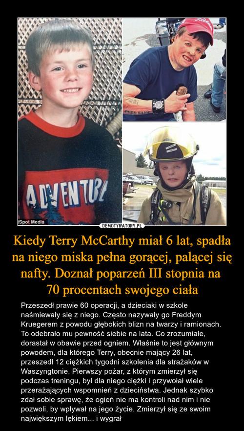 Kiedy Terry McCarthy miał 6 lat, spadła na niego miska pełna gorącej, palącej się nafty. Doznał poparzeń III stopnia na  70 procentach swojego ciała