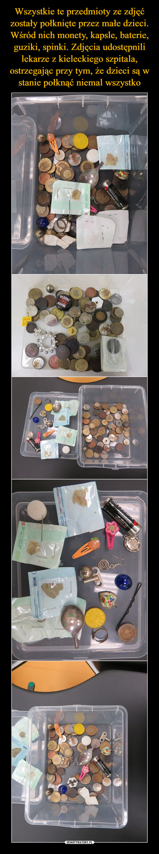 Wszystkie te przedmioty ze zdjęć zostały połknięte przez małe dzieci. Wśród nich monety, kapsle, baterie, guziki, spinki. Zdjęcia udostępnili lekarze z kieleckiego szpitala, ostrzegając przy tym, że dzieci są w stanie połknąć niemal wszystko