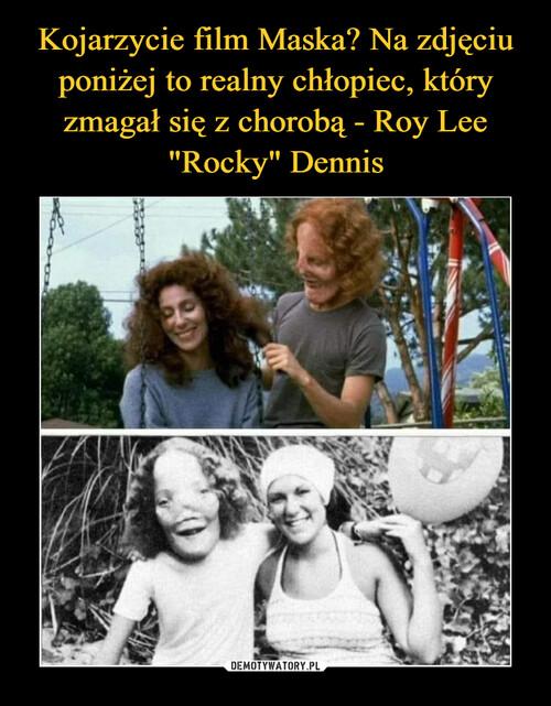 """Kojarzycie film Maska? Na zdjęciu poniżej to realny chłopiec, który zmagał się z chorobą - Roy Lee """"Rocky"""" Dennis"""