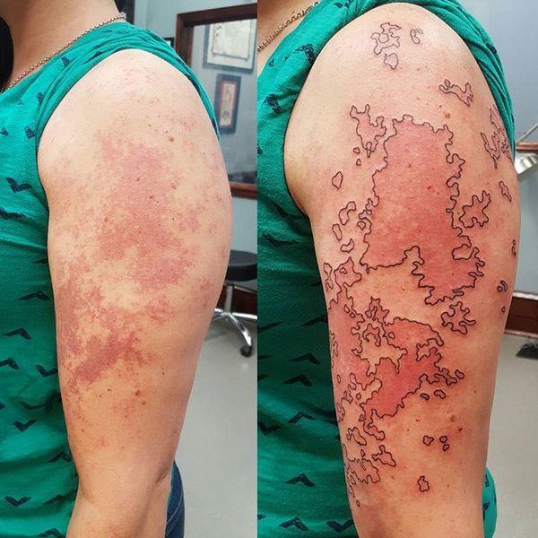 20 Fantastycznych Tatuaży Dzięki Którym Znamiona I Blizny